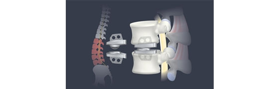 Are You a Candidate for an Artificial Disc Replacement Surgery?