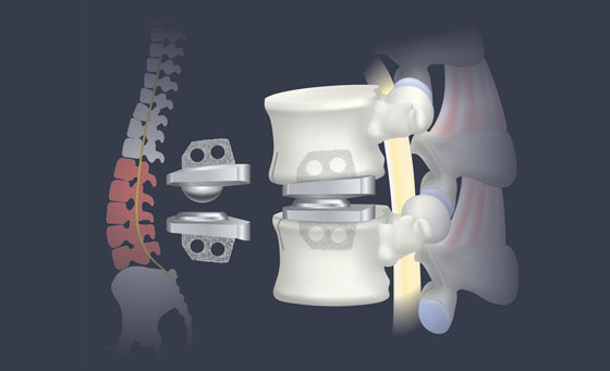 Artificial Disc Replacement Surgery