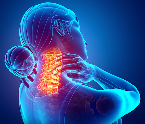 Preparing for Your Cervical Spinal Fusion