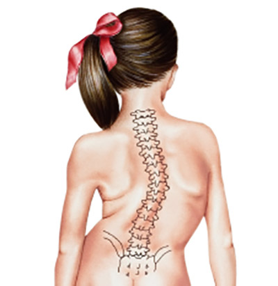 Scoliosis Surgery: The Complete Guide